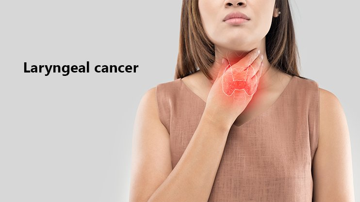 Laryngeal Cancer: Causes, Symptoms, Treatment, and Prevention