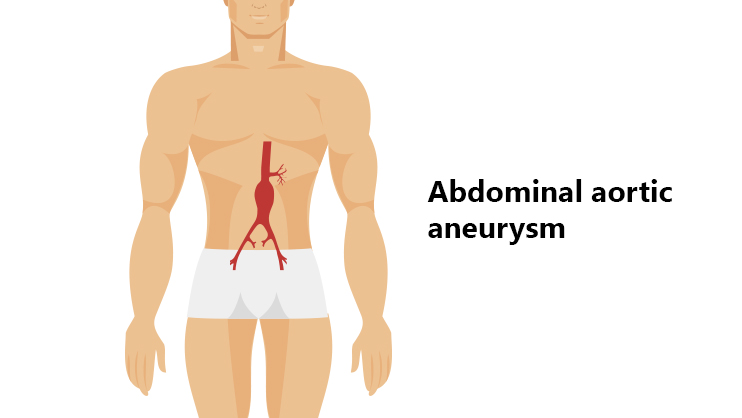 Abdominal Aortic Aneurysm: Causes, Symptoms, And Prevention – Medlife